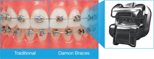 Damon Braces - West Island Orthodontist