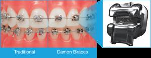 Damon Braces - West Island Orthodontist