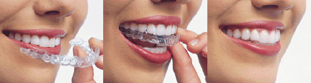 The Invisalign