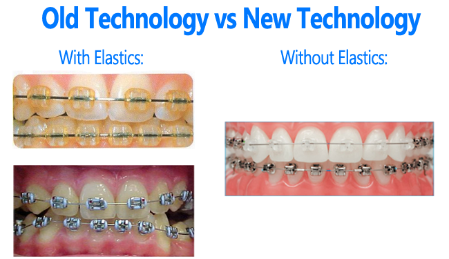 Braces with and without elastics - new technologies