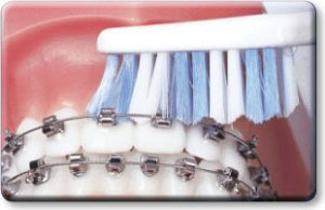 SPEED Braces teeth brush